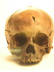 青谷上寺地遺跡 頭蓋骨